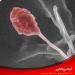کشف و نامگذاری گونه جدید قارچ اندوفیت Pithoascus persicus